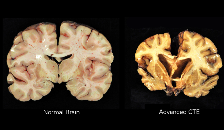 The image portrays the effects that CTE has on the brain and compares it to a normal brain, showing the damage done to NFL players. (Image courtesy of Boston University)